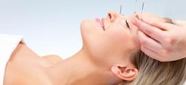 Slăbeşte cu ajutorul acupuncturii