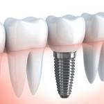 implanturi_dentare_rapide_dr-leahu