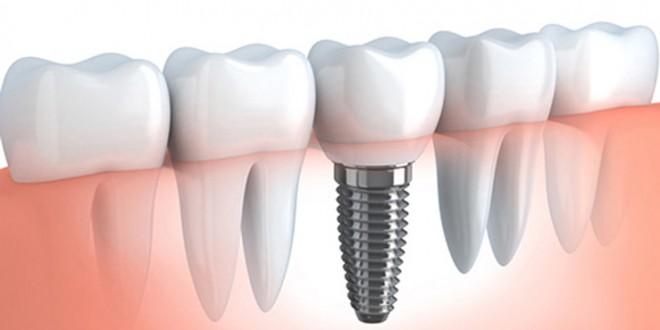 Fa-ti cadou de Sarbatori implanturi dentare rapide de la Dr. Leahu